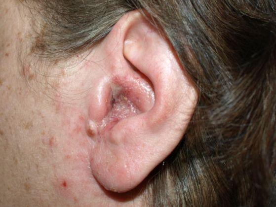 Penyakit di Bagian Telinga