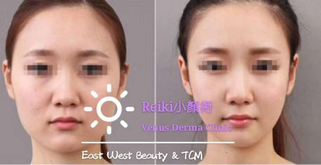 WeChat Image_20180709215841