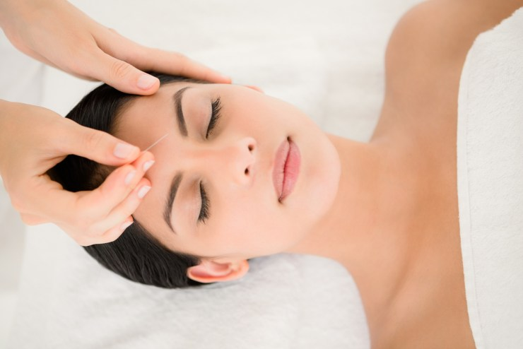 facial cosmetic acupuncture Lakewood look younger