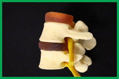 normal disc, normal nerve