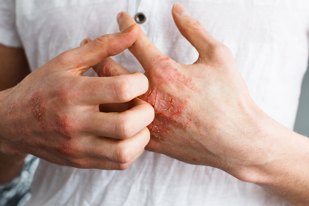 man itching his hand due to adult eczema
