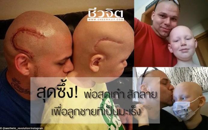 สัก, สักลาย, ลายสัก, รอยแผลเป็น, แผลผ่าตัดมะเร็ง, มะเร็ง, มะเร็งสมอง, โรคมะเร็ง, cancer, โรคมะเร็งสมอง, มะเร็งสมอง