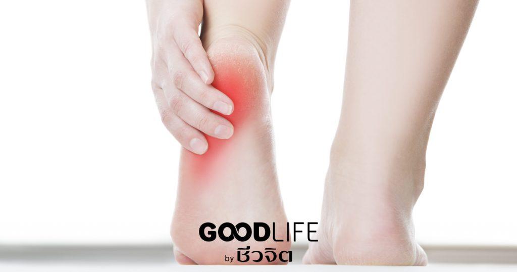 ปวดส้นเท้า, อาการปวดส้นเท้า, รองช้ำ, ปวดเท้า, เท้า