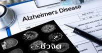 ป้องกันโรคอัลไซเมอร์, อัลไซเมอร์โลก