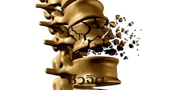โรคกระดูกพรุน, กระดูกพรุน, กระดูก, กระดูกหัก, ป้องกันโรคกระดูกพรุน