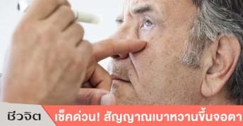 เบาหวานขึ้นตา, เบาหวานขึ้นจอตา, เบาหวาน, โรคเบาหวาน, ตา, ดูแลสุขภาพ