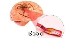 อัมพฤกษ์ – อัมพาต, อัมพฤกษ์, อัมพาต, โรคหลอดเลือดสมอง
