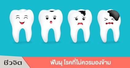 ฟันผุ ปวดฟัน โรคฟันผุ ฟัน ฟันเป็นหนอง เหงือกบวม ช่องปาก ปากและฟัน