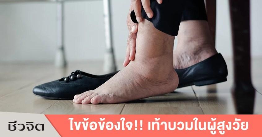 อาการเท้าบวม ในผู้สูงอายุ-เท้า-ผู้สูงอายุ-การดูแลผู้สูงอายุ-อาการบวม
