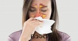 ไซนัสอักเสบ ไซนัส โรคไซนัสอักเสบ โรคภูมิแพ้ ภูมิแพ้ จมูก โรคที่เกี่ยวกับจมูก