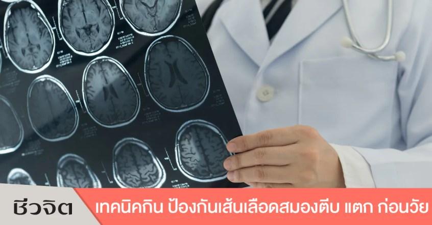 ป้องกันเส้นเลือดในสมองตีบ เส้นเลือดในสมองแตก โรคหลอดเลือดสมองแตก