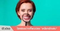 เหงือกอักเสบ เหงือกและฟัน เหงือกอักเสบ โรคช่องปาก ปากและฟัน