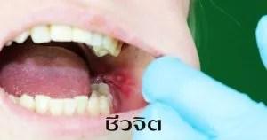 แผลร้อนใน ร้อนใน โรคช่องปาก แผลในปาก ปาก