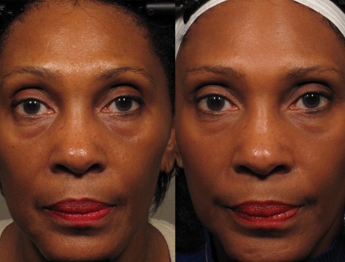 face yoga exercises for a more youthful face | goop