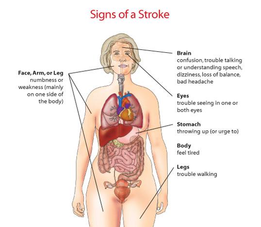 lesbian-stroke