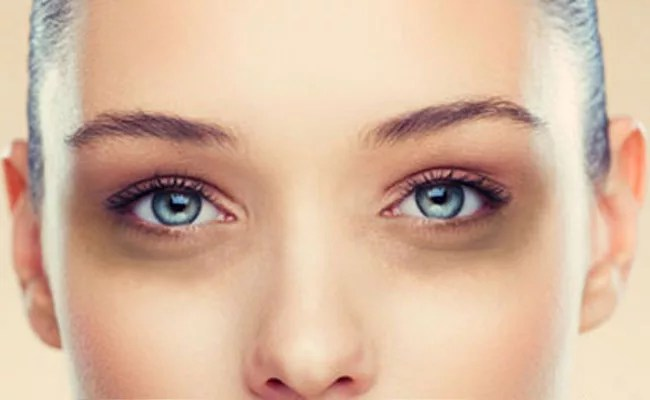 DIY | 2 Homemade Under Eye Creams For Dark Circles | Source