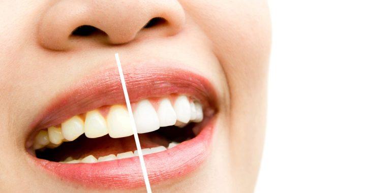 Services - Sapphire Professional Teeth Whitening - Gorgeous Smile Dental Clinic - San Jose and Newark, California