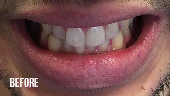 Gorgeous Smile Dental - Invisalign Before 6