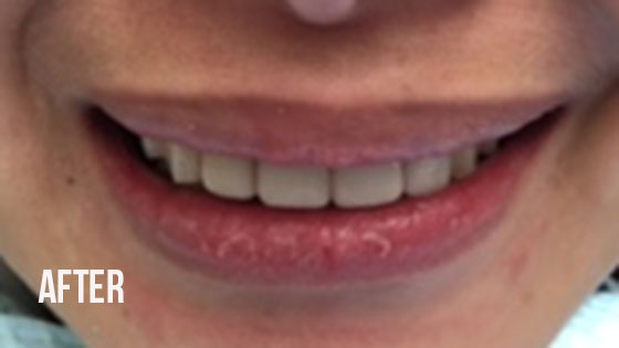 Gorgeous Smile Dental - Lumineers After 1