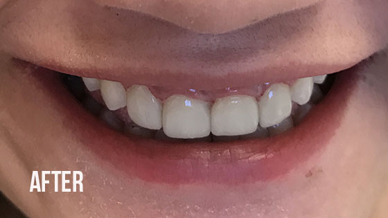 Gorgeous Smile Dental - Lumineers After 2