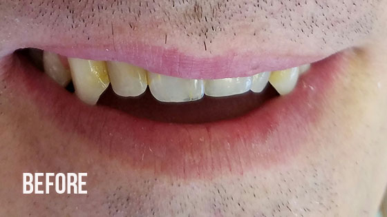 Gorgeous Smile Dental - Lumineers Before 5