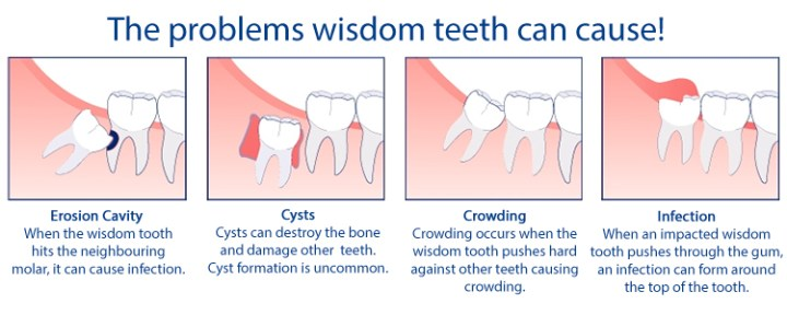 best wisdom tooth removal in newark ca