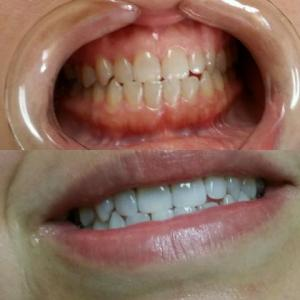 Haro, Lorraine before and after whitening