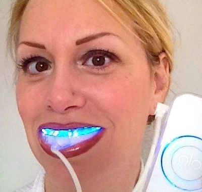 Recommended teeth whitening by your dentist