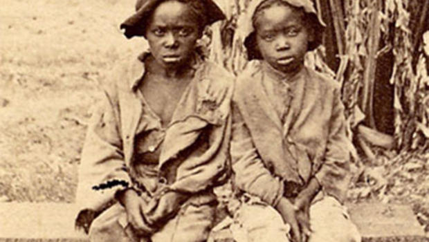 Lessons From Slavery: Malnutrition and Rickets Stunt Children's Growth