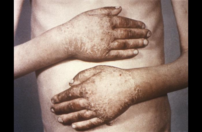 Dermatitis from pellagra