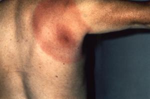 Bull's-eye rash (erythema migrans)