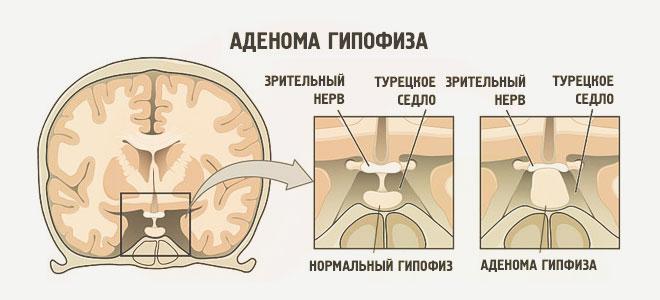 ízületi fájdalom hormonális kudarca