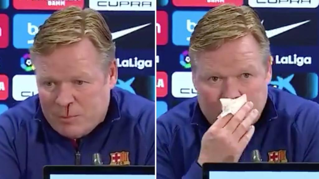 Barcelona Soccer Coach Cuts News Conference Short Over Profuse Nosebleed