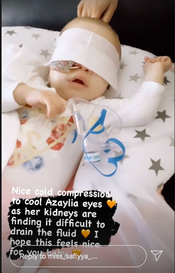 Azaylia's kidneys are struggling to drain fluid