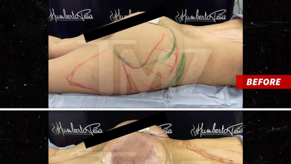 Tekashi 6ix9ine's Baby Mama Has Medical Scare After Brazilian Butt Lift