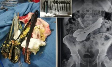 Doctors Remove Knife, 8 Spoons, Screwdrivers, Toothbrushes From Man's Stomach