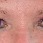 Seducer Lenses