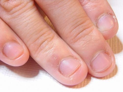 【衝撃的】 女に深爪が多い理由がこちらですwwwwwwwww