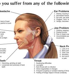 jaw joint disorders [ 1200 x 895 Pixel ]