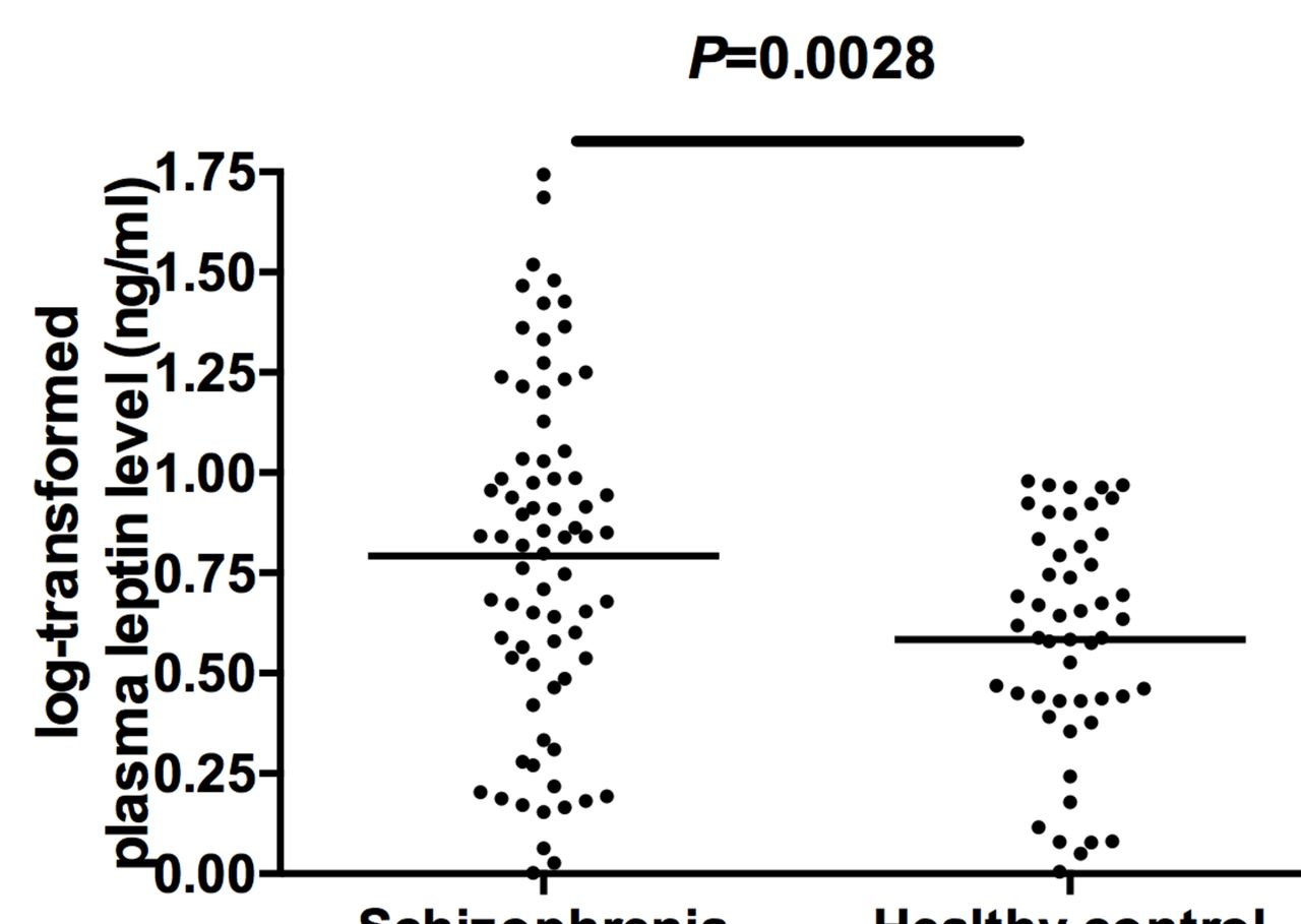 Increased plasma leptin as a novel predictor for