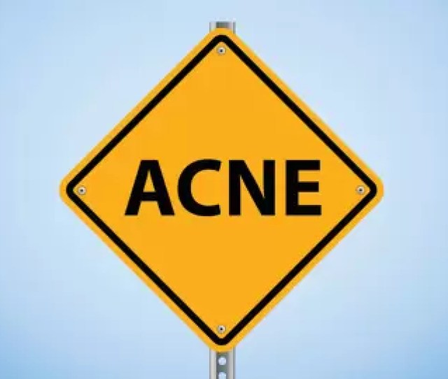 Adult Acne What Causes It And How To Cure It