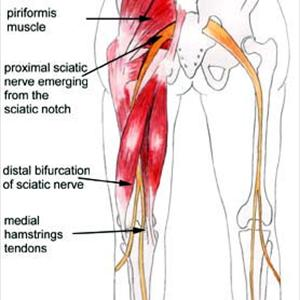 lumbar nerve root diagram togaf framework ever heard of radiculopathy better known as the radiating pain