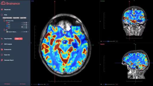 Brainance MRI