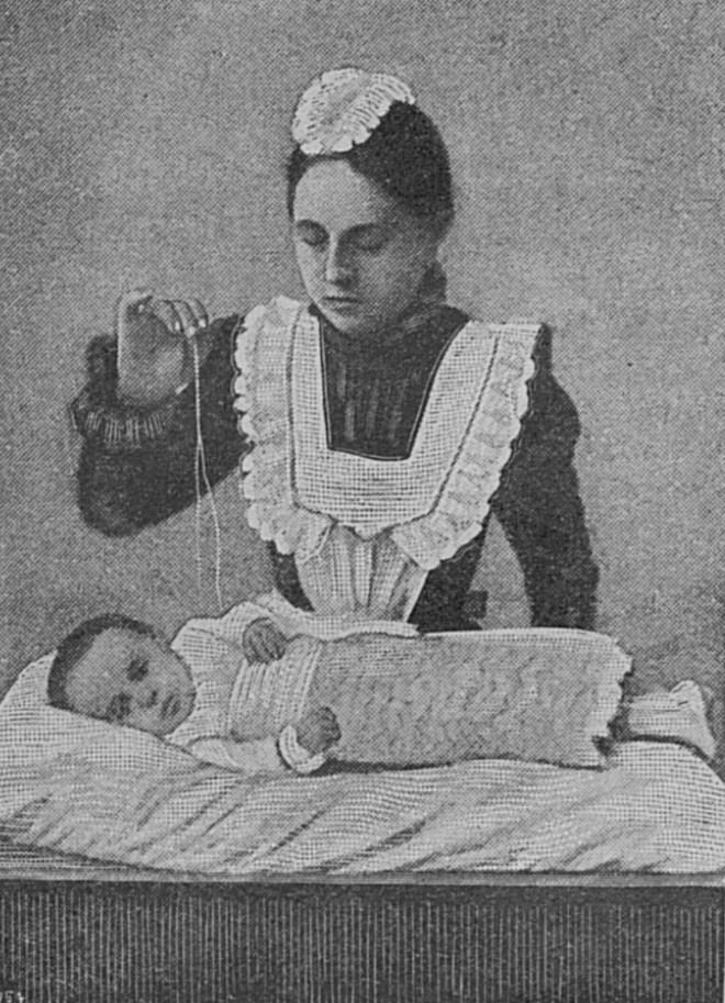 Как надо зашивать ребенка