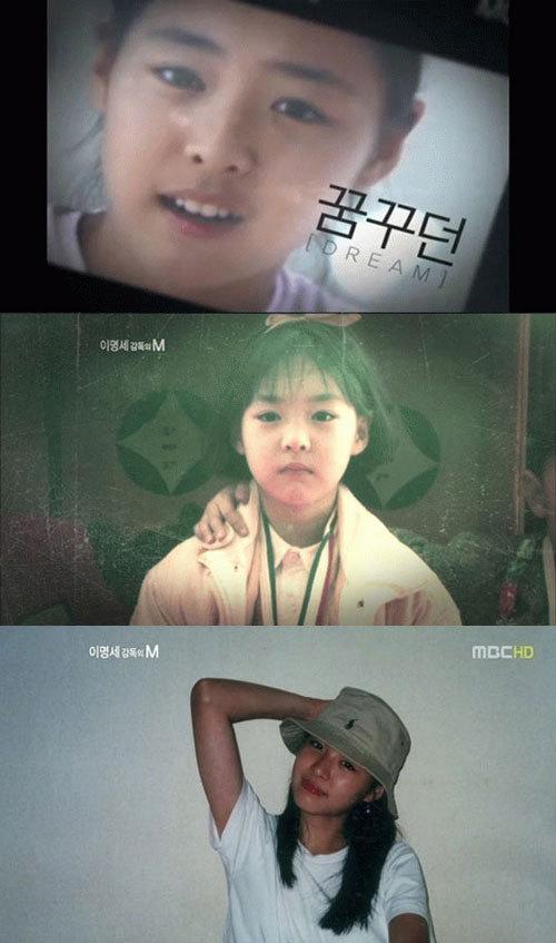 lee yeon hee  Grand Plastic Surgery