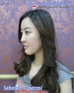 인도네시아_김주희_수술전3