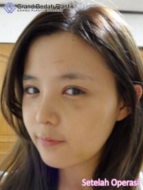 6.인도네시아-박선아-수술후셀카