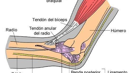 tendinitis musico