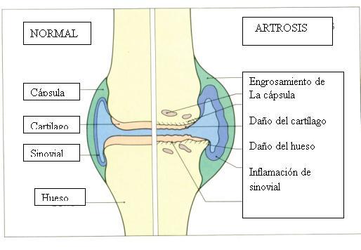 artros1