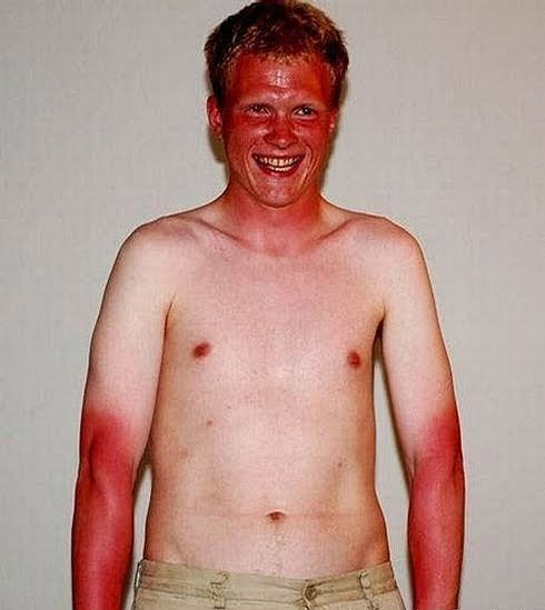 Ask An Astrochemist: What's With All The Sunburn In Iceland?